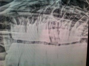 Fraktur 109 Röntgen